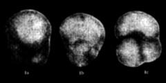 To Mikrotax (Globigerina sakitoensis Asano 1962)