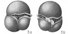 To Mikrotax (Sphaeroidina)