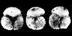 To Mikrotax (Globoquadrina palmerae Bermúdez 1961)