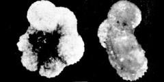 To Mikrotax (Globigerina scobinata Bermúdez 1961)