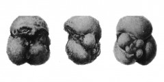 To Mikrotax (Globigerina eximia Todd 1957)
