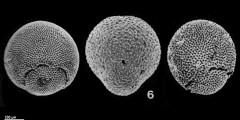 To Mikrotax (Praeorbulina glomerosa(Lipps 1964))