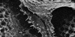 To Mikrotax (Dentoglobigerina globosa (Bolli, 1957))