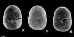 To Mikrotax (Sphaeroidinellopsis paenedehiscens Blow, 1969)